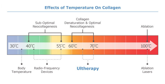 ultherapy-temperature